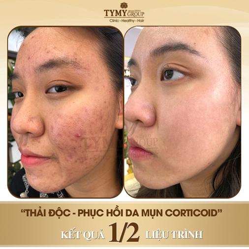 Hình ảnh trước và sau điều trị mụn